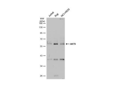 Anti-AKT3 antibody