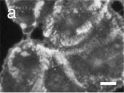 anti-COL17A1 (COL17) antibody