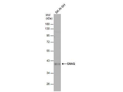 Anti-GNAQ antibody