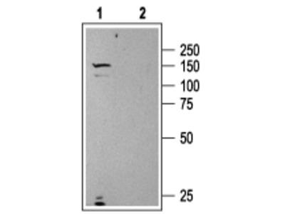 Anti-Urotensin II Receptor Antibody