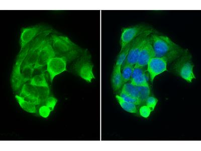 Anti-PAH antibody [N1C2]