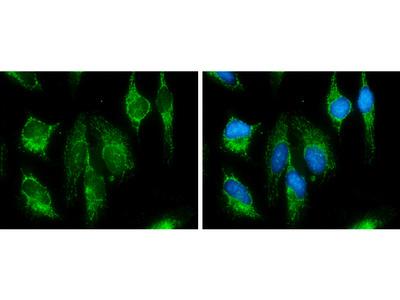 Anti-SDHB antibody