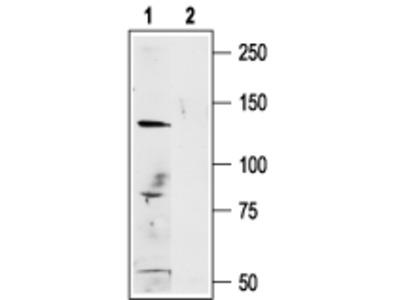 Anti-Human TRPM1 Antibody