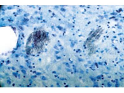Anti-P2Y1 Receptor Antibody