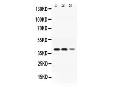 Anti-ADH4 Picoband Antibody