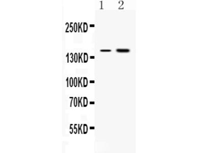 Anti-Insulin Receptor Picoband Antibody