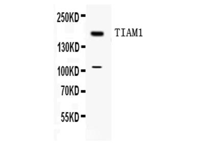 Anti-TIAM1 Antibody Picoband