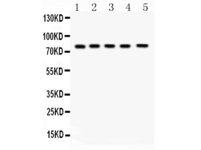 Anti-FSH Receptor/FSHR Picoband Antibody
