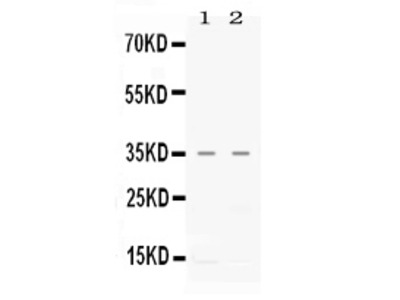 Anti-CXCL16 Antibody Picoband