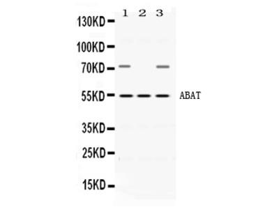 Anti-ABAT Picoband Antibody