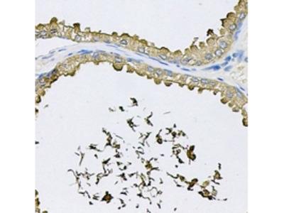 RNASE13 Antibody