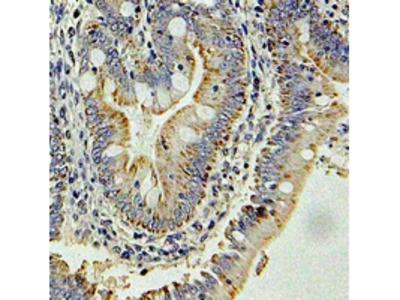 GLNRS / QARS Antibody