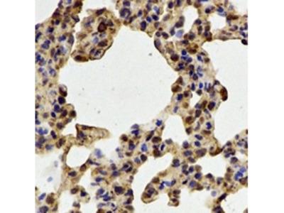 PADI4 / PAD4 Antibody