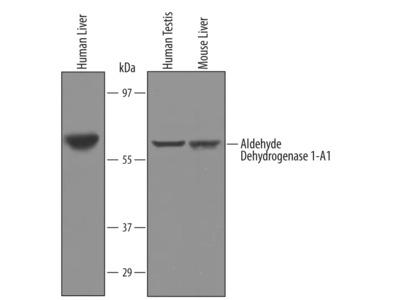 Human / Mouse Aldehyde Dehydrogenase 1-A1 / ALDH1A1 Antibody