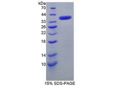 SMN1 Protein