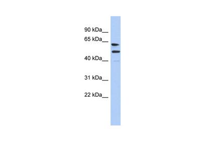 CXorf67 antibody - middle region (ARP55963_P050)