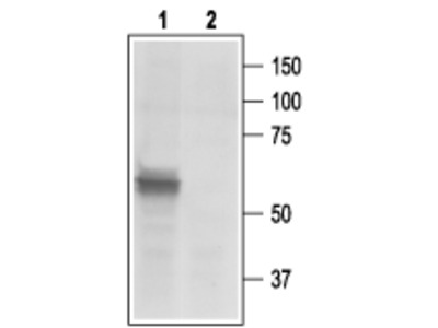 Anti-P2X3 Receptor Antibody