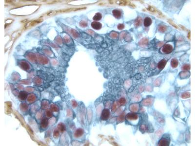 ABC Kit For Visible Chromogen