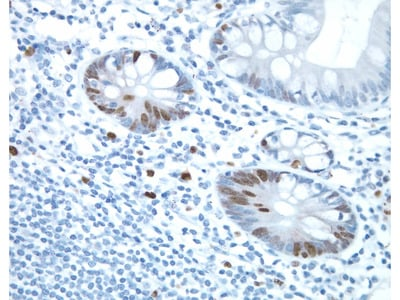 Reporter System For Immunohistochemistry (IHC) With Rabbit Primary Antibodies (Abs)