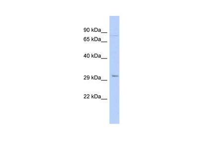 PITX2 antibody - N-terminal region (ARP32431_P050)