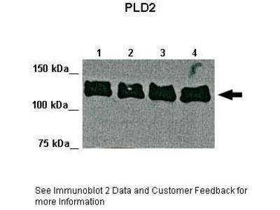 PLD2 antibody - middle region (ARP33044_P050)