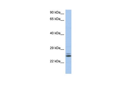 RAB15 antibody - N-terminal region (ARP55917_P050)