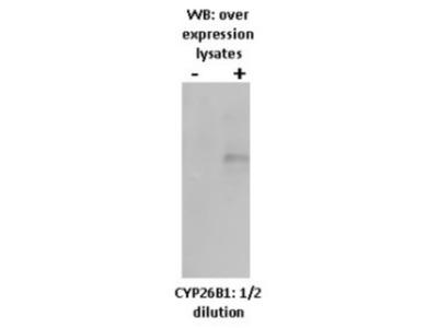 Mouse Monoclonal Cytochrome P450 26B1 Antibody