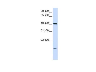 TMEM79 antibody - C-terminal region (ARP50061_P050)