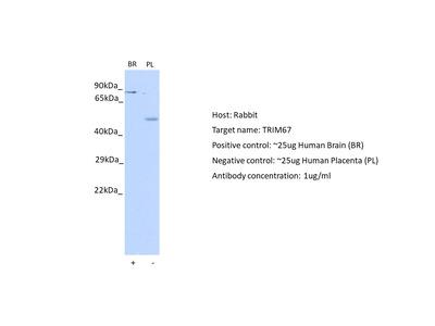 TRIM67 antibody - C-terminal region (ARP42961_P050)