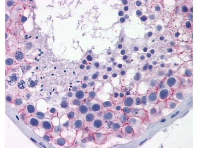 TJP1 antibody - middle region (ARP36636_P050)
