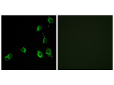 OR5B12 Antibody