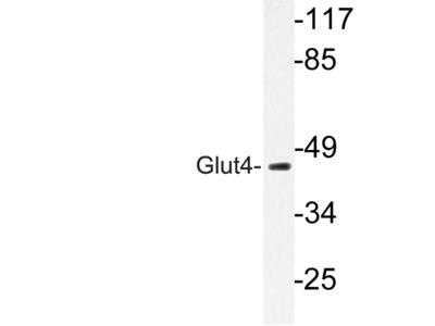 SLC2A4 / GLUT-4 Antibody