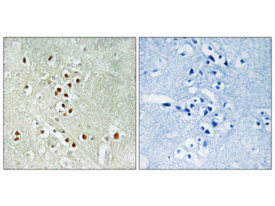 GADD45GIP1 / CRIF1 Antibody