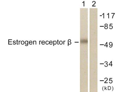 ESR2 / ER Beta Antibody