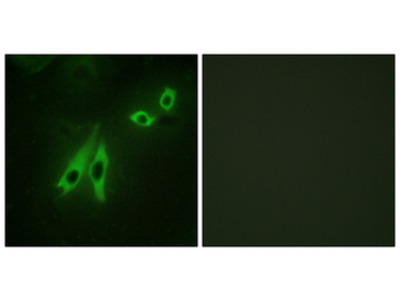 AKAP110 / AKAP3 Antibody