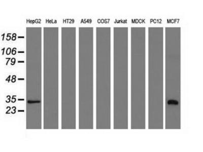 SULT2A1 / Sulfotransferase 2A1 Monoclonal Antibody