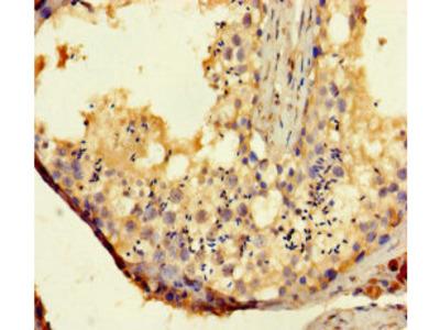 TAS2R14 / TRB1 Antibody