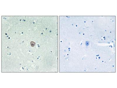 S1PR5 / EDG8 / S1P5 Antibody