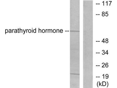 PTH / Parathyroid Hormone Antibody