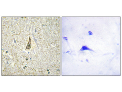 CYP26C1 Antibody
