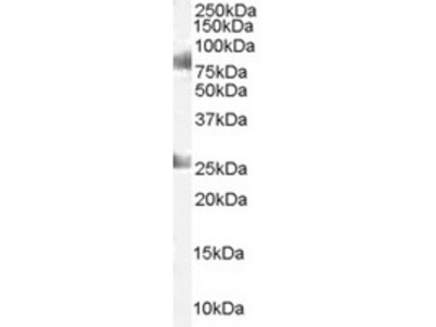 Goat Polyclonal Antibody against CDYL