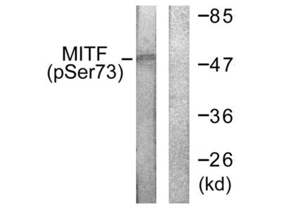 MITF Antibody