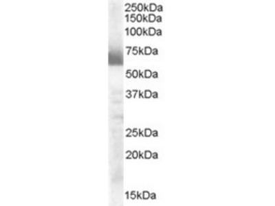 Goat Polyclonal Antibody against CYP17A1