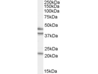 Goat Polyclonal Antibody against GABPB2