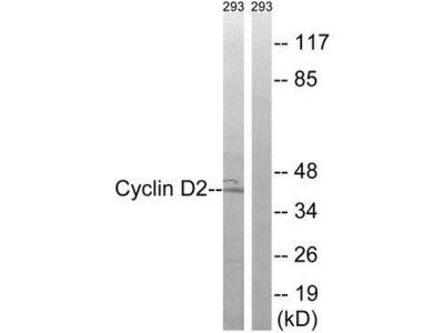 CCND2 / Cyclin D2 Antibody