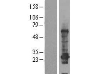C12orf68 (CCDC184) (NM_001013635) Human Over-expression Lysate