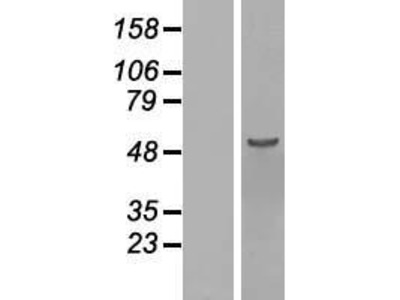 Transient overexpression lysate of chromosome 16 open reading frame 88 (C16orf88)