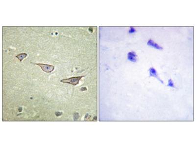 COX15 Polyclonal Antibody