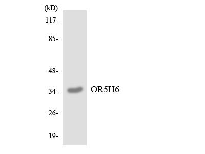 OR5H6 Polyclonal Antibody