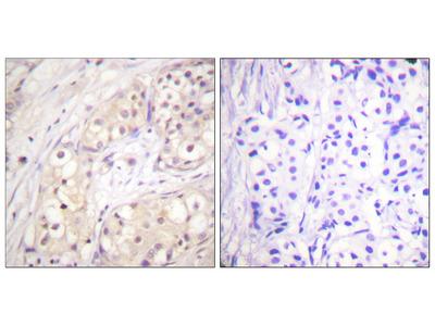 BRAF / B-Raf Antibody
